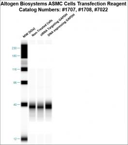 ASMC-cells-transfection-protocol