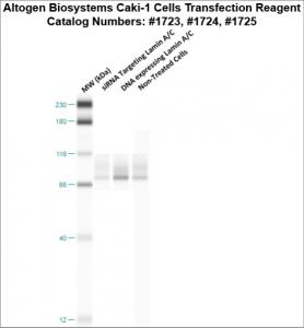 Caki1-cells-transfection-protocol