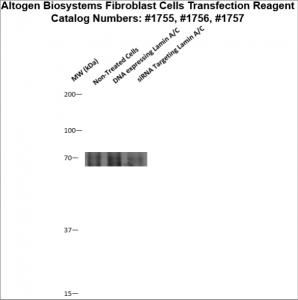 Fibroblast-cells-transfection-protocol