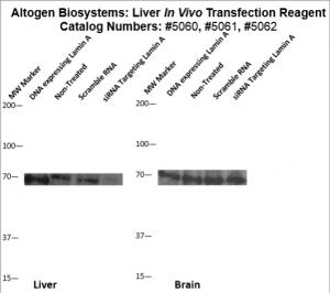 Liver-Targeted-Transfection-Altogen-Catalog-5062-1