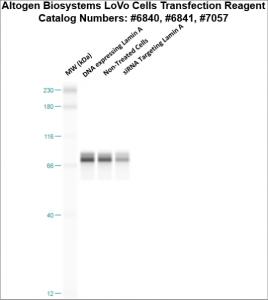 LoVo-cells-transfection-protocol
