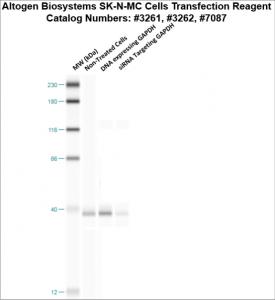 SKNMC-cells-transfection-protocol